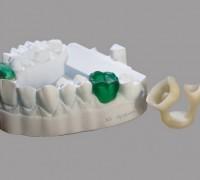 Противокариесные зубы