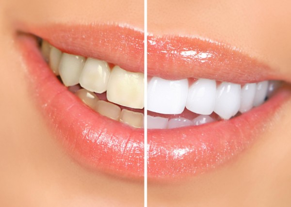 Отбеливание зубов: за и против